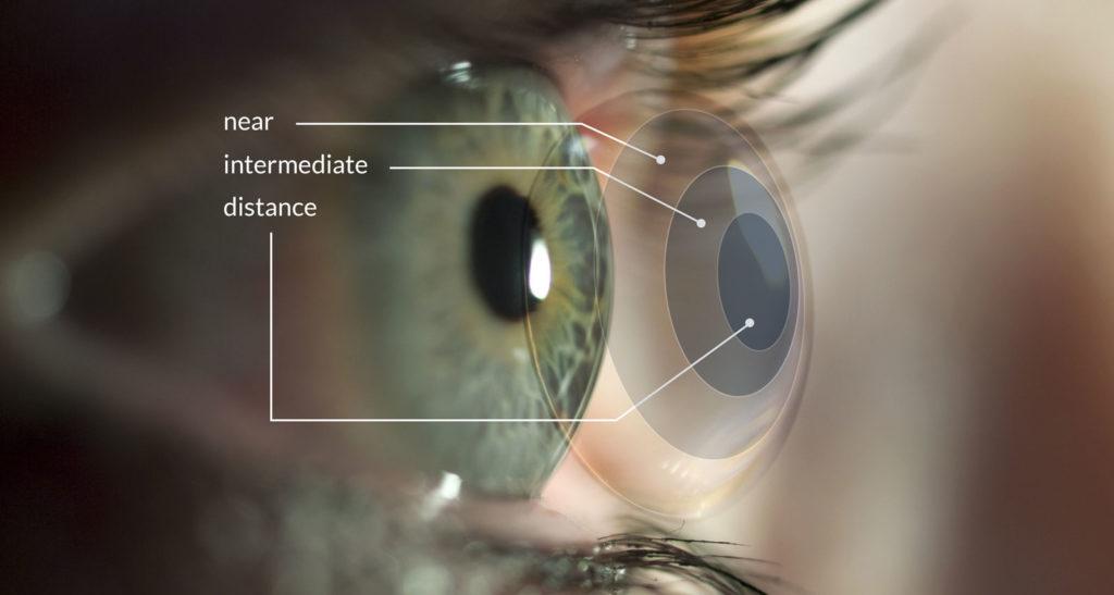 astigmatism myopia contact lenses)